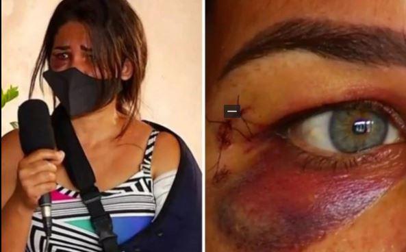 agred - Funcionária de padaria é agredida e tem braço quebrado após pedir para cliente usar máscara