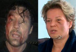 """DEBOCHADO! Ator aparece com rosto machucado e manda indireta para Joice Hasselmann: """"Sofri um atentado"""""""