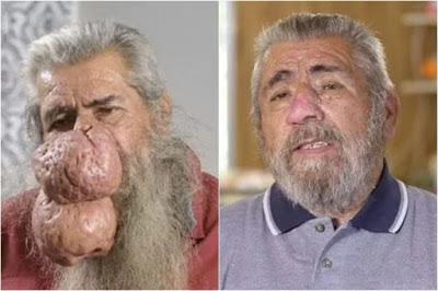 image 750x 60f094243ba20 - Homem faz cirurgia após espinha inflamada evoluir para rinofima grave