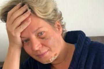 xJoice Hasselmann mostra hematomas no rosto.jpg.pagespeed.ic .8Zn7925oVI 360x240 - Polícia Legislativa diz que Joice não saiu de casa entre 15 e 20 de julho