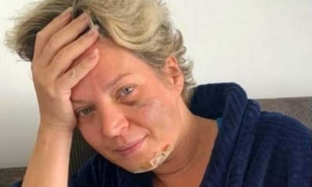 xJoice Hasselmann mostra hematomas no rosto.jpg.pagespeed.ic .8Zn7925oVI - Polícia Legislativa diz que Joice não saiu de casa entre 15 e 20 de julho