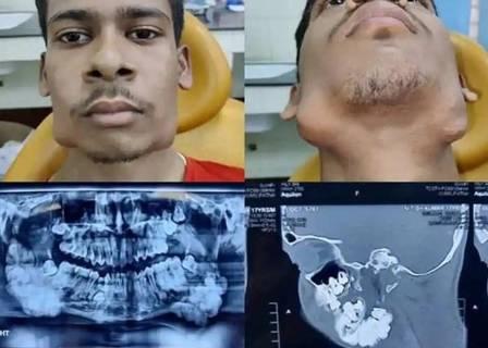 xblog teeth.jpg.pagespeed.ic .J8xXEiXKOn - Homem é submetido a cirurgia para a retirada de 82 dentes extras