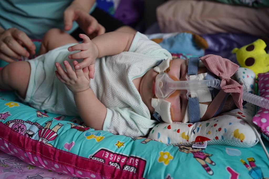 12. kwek yu xuan discharged well to home credit to nuh - MILAGRE! Menor bebê prematuro do mundo, nascida com peso de uma maçã, tem alta após 13 meses