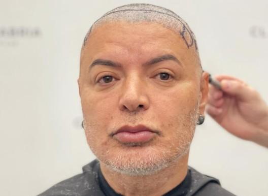 Captura de tela 2021 08 13 091837 - Após 11 horas de cirurgia, David Brazil exibe resultado de plástica - VEJA VÍDEO