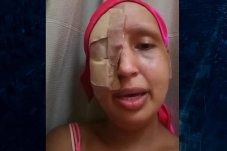 Capturar 79 - Mulher finge estar com câncer terminal e arrecada R$ 50 mil em doações