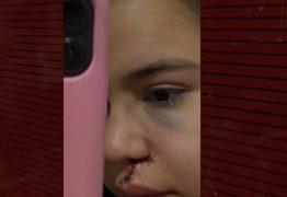 VIOLÊNCIA: Jovens são agredidas com garrafada após se negarem a dançar com homem em vaquejada de Cajazeiras
