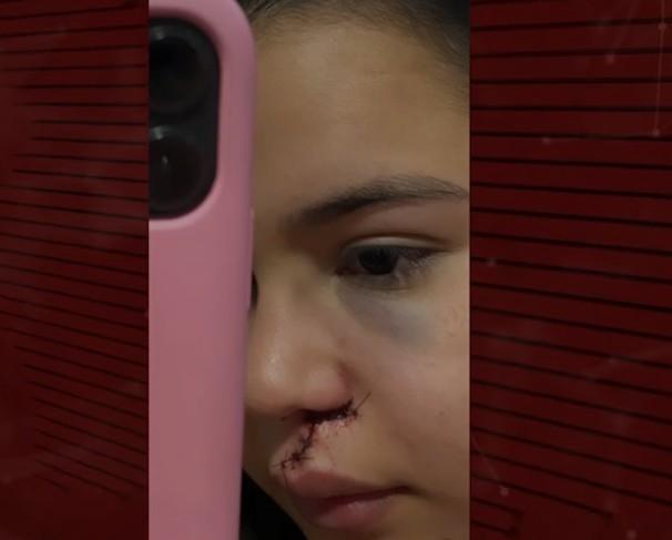 Capturar 85 - VIOLÊNCIA: Jovens são agredidas com garrafada após se negarem a dançar com homem em vaquejada de Cajazeiras