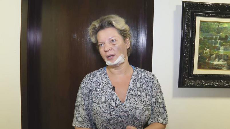 a deputada federal joice hasselmann psl sp mostra local das supostas agressoes - Remédio usado por Joice Hasselmann pode causar perda de memória, diz psiquiatra