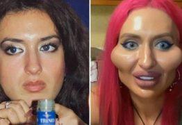 Modelo com 'as maiores maçãs do rosto do mundo' se define como 'monstro bonito'