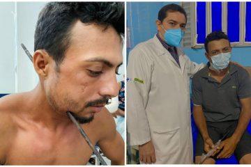 aldinailson 360x240 - NOVA VIDA! Paciente passa por cirurgia para retirar ferro que atravessou a lateral do pescoço: 'Eu sou um milagre'