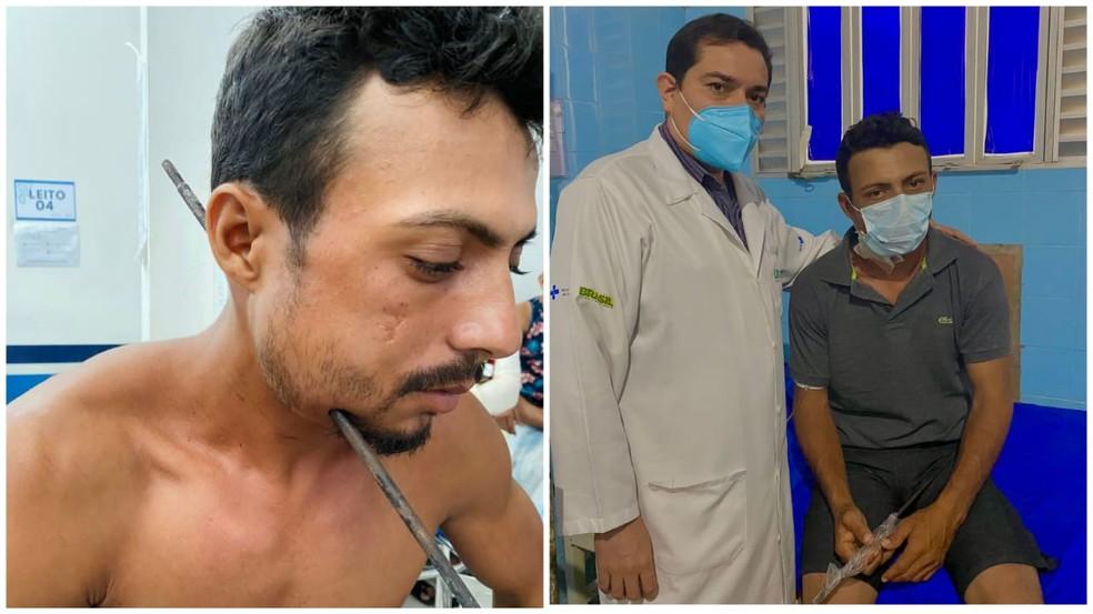 aldinailson - NOVA VIDA! Paciente passa por cirurgia para retirar ferro que atravessou a lateral do pescoço: 'Eu sou um milagre'