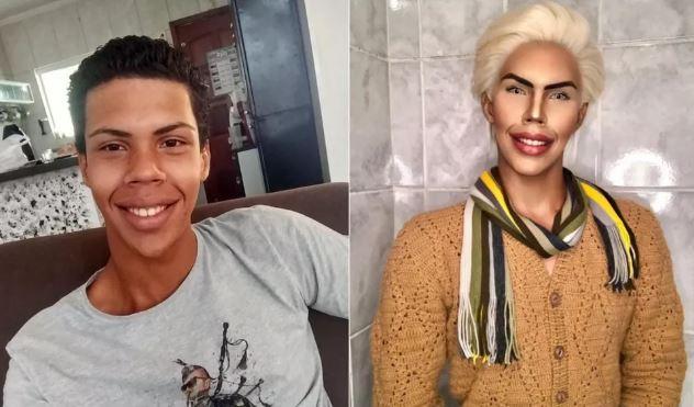 ken - Jovem desiste de ser o 'Ken Humano' e diz que 'estava se perdendo' com as transformações