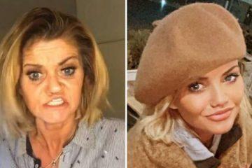 Atriz que teve rosto corroído por cocaína choca fãs após cirurgias