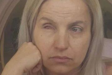 "empresaria 360x240 - Empresária denuncia que perdeu olho após plástica para diminuir a pálpebra: ""Derreteu"""