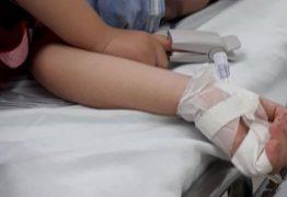 BOLETIM MÉDICO: Menino de 4 anos que teve caneta cravada no pescoço se recupera bem