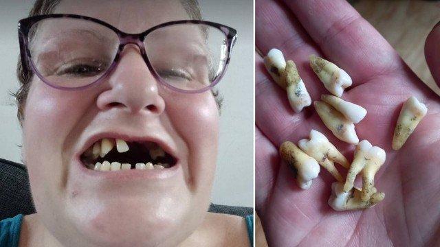 xblog teeth 1.jpg.pagespeed.ic .TjVLaRv dV - Sem dinheiro para ir a dentista, mulher arranca sozinha 11 dentes: 'Foi no desespero'